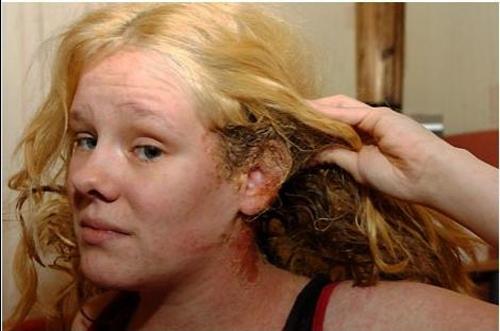 аллергия в волосах на голове фото