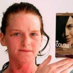 Причины, симптомы и лечение аллергии на краску для волос