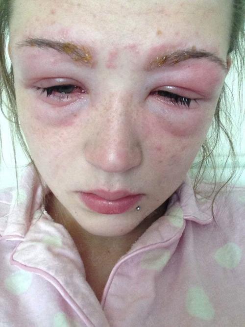 Аллергия на бальзамы для волос