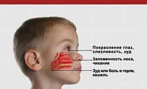 Симпотмы аллергического ринита
