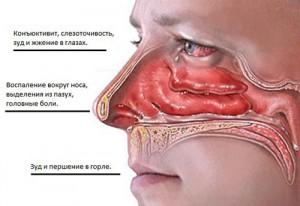 Симптомы гайморита аллергического
