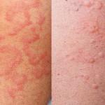 Как победить аллергическую крапивницу