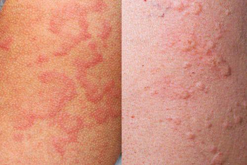 гепатит аллергия