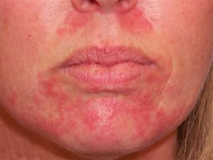 Аллергический дерматит на лице1