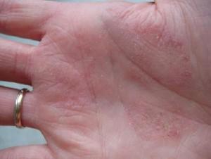 Аллергический дерматит3