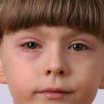 Как применять глазные капли от аллергии для детей и грудничков (до 1 года)