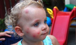 Аллергия на укусы блох у детей