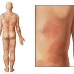 Аллергия на хлеб у ребенка: как лечить, симптомы и причины