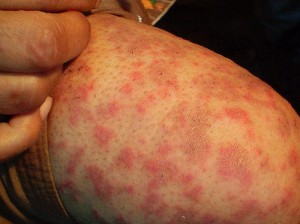 Фото: аллергия на глютен