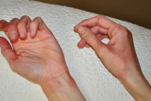 Аллергия после прививки манту