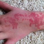 Симптомы аллергии на хну и ее лечение