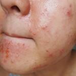 Симптомы аллергии на цитрусовые