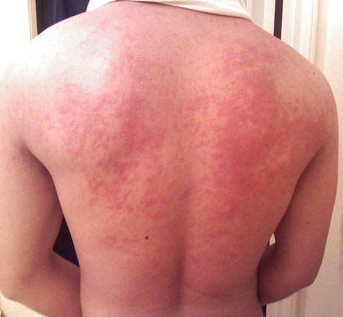 аллергия на хлеб фото