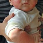 Аллергия на лактозу у детей – распространенный недуг