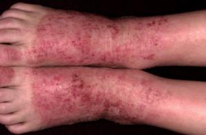 Атопический дерматит2