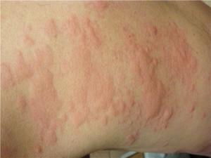 Аллергия на зеленый чай симптомы
