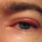 Глазные капли от аллергии: список наиболее востребованных лекарственных средств