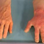 Причины, симптомы и лечение аллергии на порошок