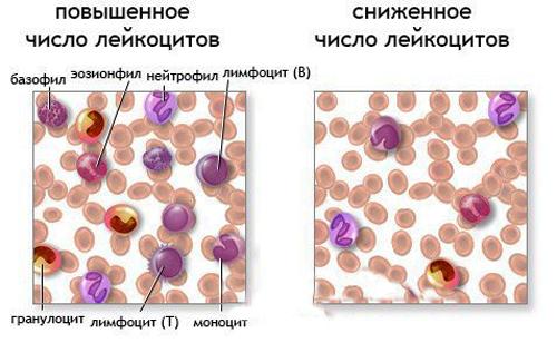 анализ крови повышение холестерина