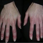 Аллергия на гель для наращивания ногтей