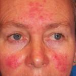 Почему возникает аллергия на прополис и как ее лечить?