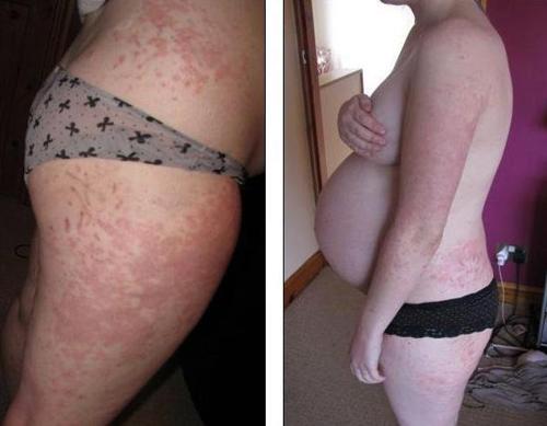 Аллергическая реакция у беременной 57