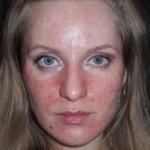 Лечение и симптомы аллергии на парацетамол