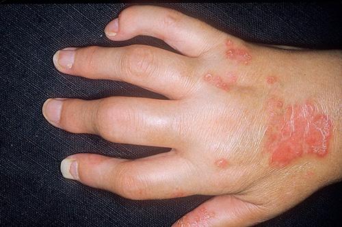 Аллергический полиартрит суставы артроскопия плечевого сустава отзывы больница 83