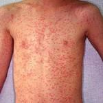 Аллергия на рыбу и икру – как диагностировать и лечить болезнь