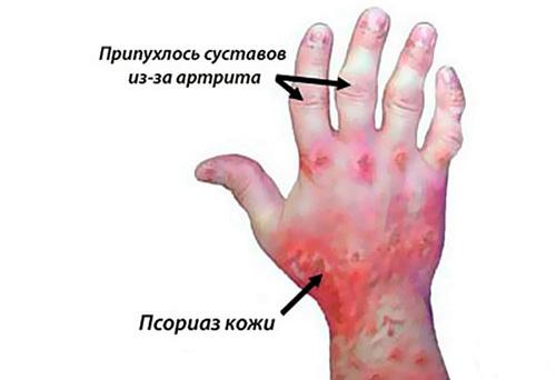 Аллергический артрит - причины, симптомы, лечение препаратами