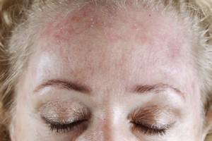 контактном аллергическом дерматите