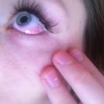 Как лечить аллергию на амброзию
