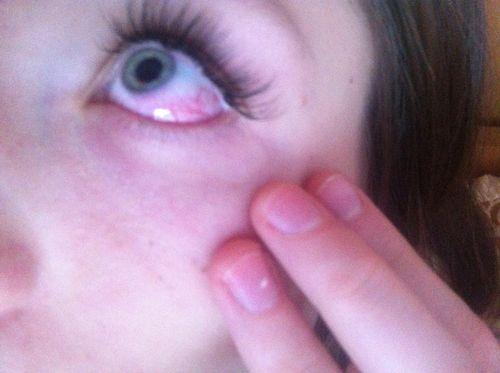 аллергия на амброзию фото