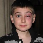 Симптомы и лечение отека глаз при аллергии