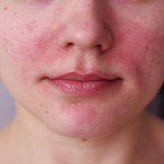 Аллергия на косметику – высокая чувствительность или болезнь?