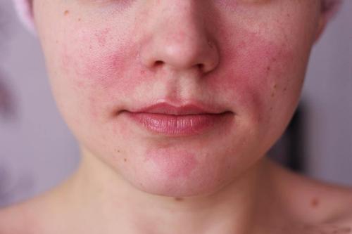 покраснения на коже лица в виде пятен
