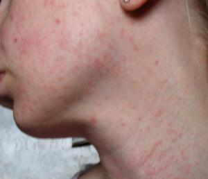 Кожные симптомы аллергии на витамины