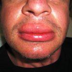 Аллергия на шоколад: характерные признаки и лечение