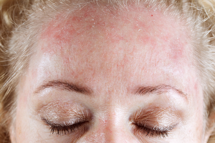 Аллергия на крем