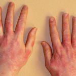 Аллергия на картофель: профилактика и лечение пищевой непереносимости
