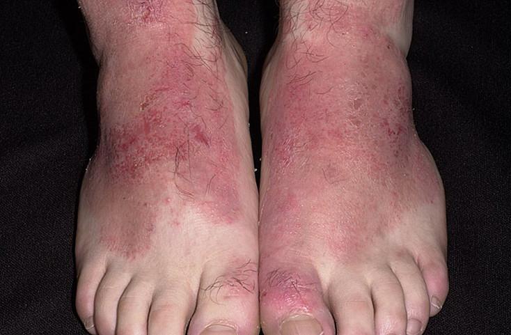 аллергия на ногах чем мазать