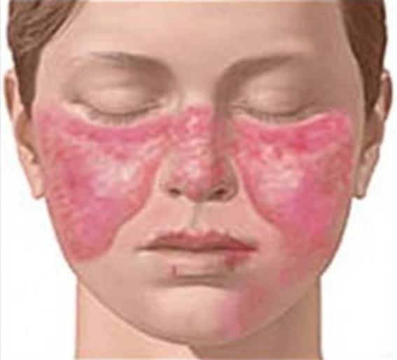 Проявления геморрагического васкулита на лице
