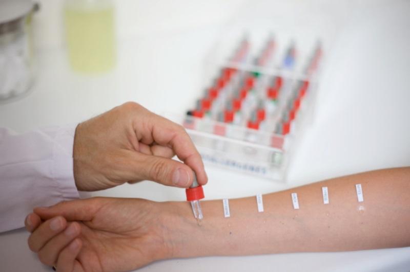 Как узнать от чего аллергия у взрослого