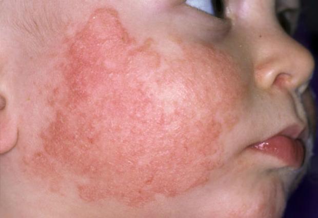 что делать при аллергии на линдинет 30
