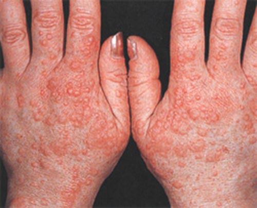 аллергия на руках лечение фракцией асд 3