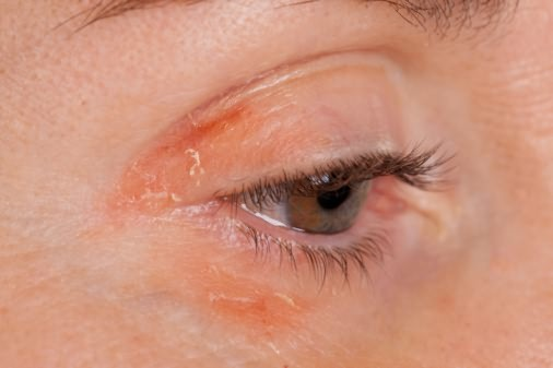 Аллергическая реакция на тушь для ресниц