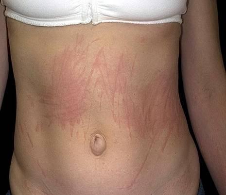 может ли быть аллергия на пух тополя