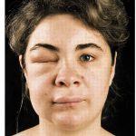Как возникает аллергия и как от нее избавиться?
