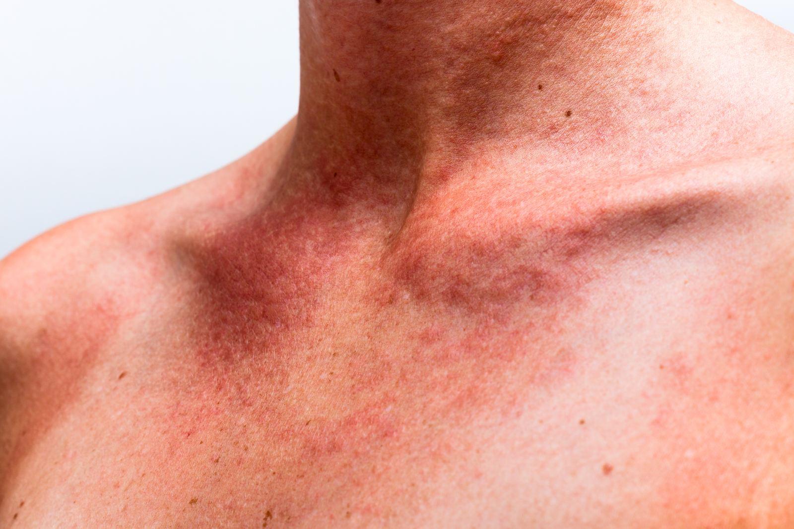 Аллергия на витамин д у грудничков симптомы
